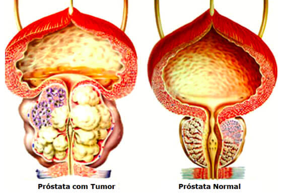 oncologia prostata
